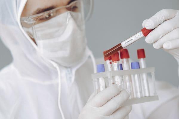 Covid-19: Minas tem quase 60 mil infectados