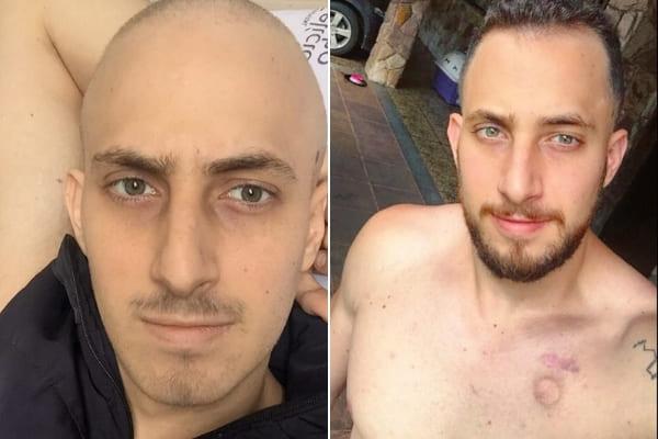 Morador de Contagem pede ajuda para transplante de medula
