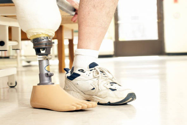 Decreto autoriza uso do FGTS para compra de órtese e prótese