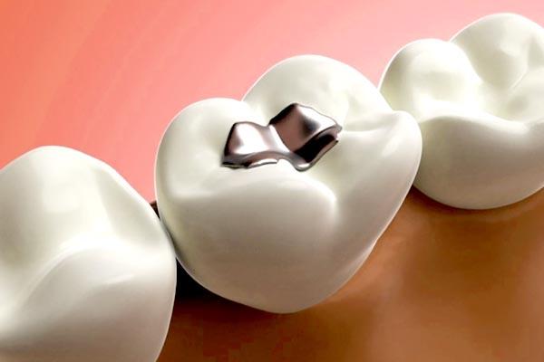 Anvisa proíbe amálgama de mercúrio não encapsulada utilizada na odontologia