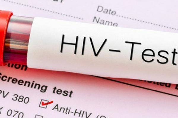 Conhecendo o HIV/Aids