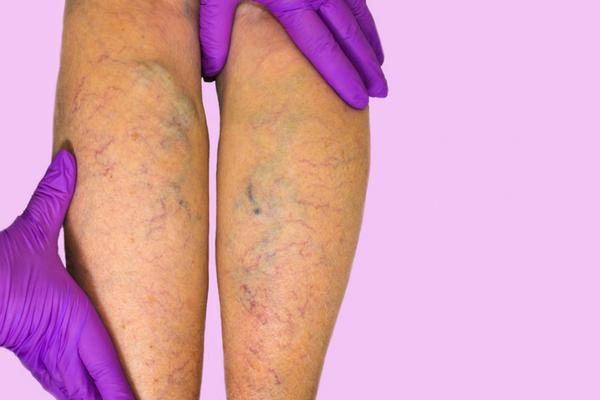 Associação médica alerta para riscos de tratamento contra varizes