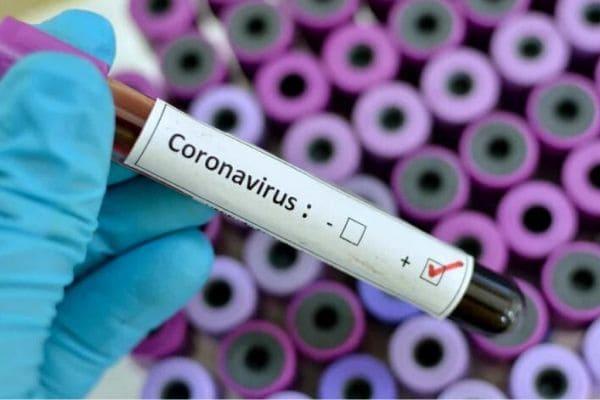 Contagem tem mais duas mortes confirmadas por Covid-19