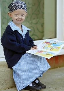 Vítima da síndrome de progeria comemora 13 anos