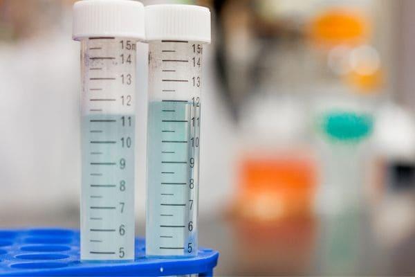 Coronavírus: segunda morte é confirmada em Minas Gerais