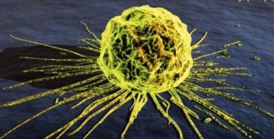Cientistas desenvolvem vírus que ataca células cancerígenas